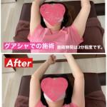 【グアシャ】筋膜整体は最短で根本を解決?!